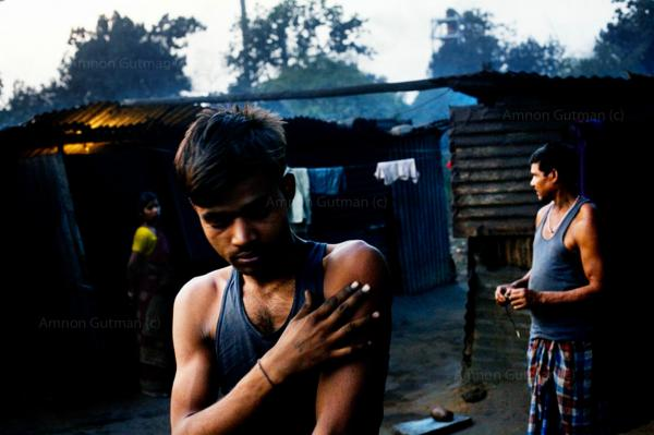 A worker of one of the main sponge plants that borders the village of Tamnar, taking rest after he was injured while working in the plant, Chhatisgrah. Poor people from all around India are going to Chhatisgrah in order to find work in the plants industry.
