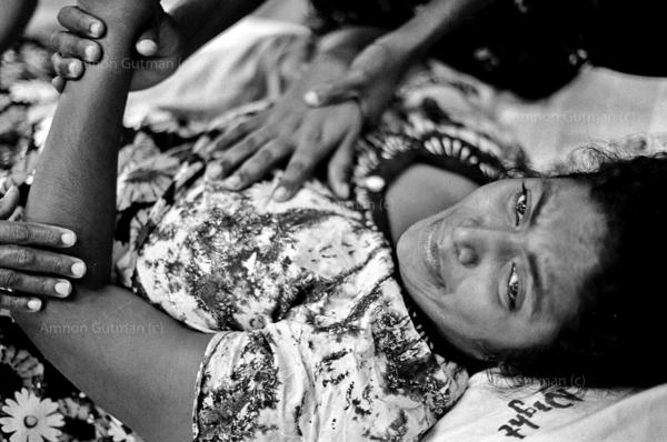 Tamil woman who was injured by a claymore mine explosion at Madhu church (in an LTTE controlled area), reciving treatment at Vavunia hospital which is under the government control.